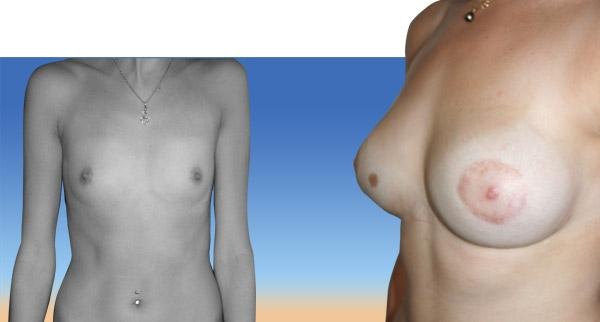 Augmentation mammaire avant / après