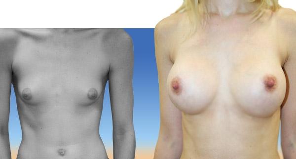 Augmentation mammaire avant / après Dr Giovannini
