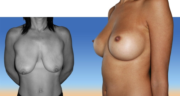 Lifting des seins avant / après