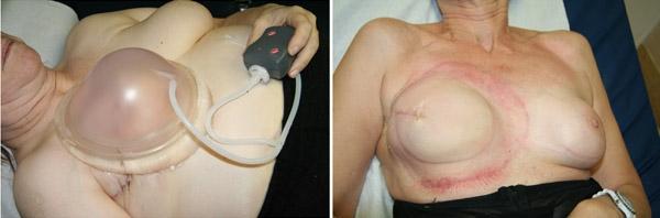 Reconstruction mammaire système Brava