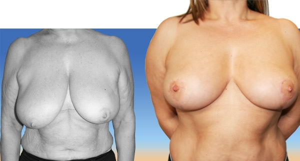 Réduction mammaire avant / après